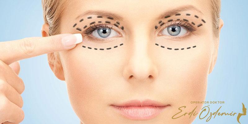 Eyelid Aesthetics